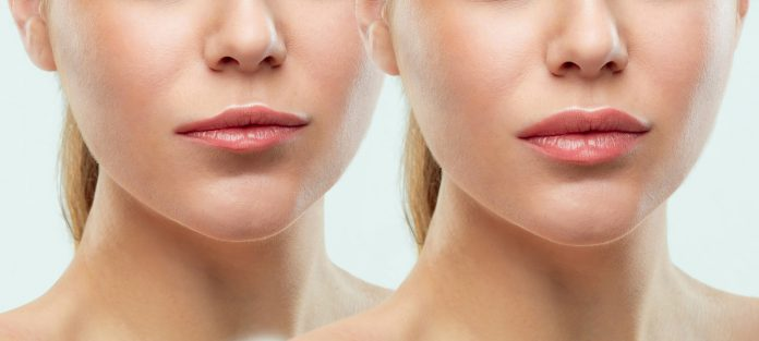 Before_After_Lips-27f304c3